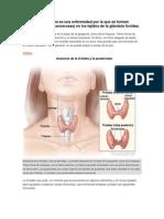 El cáncer de tiroides es una enfermedad por la que se forman células malignas