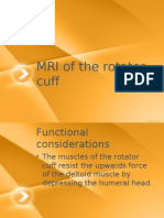 mri of the rotator cuff