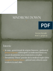 Sindrom Down