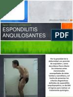 Signos Clínicos y radiológicos de espondilitis anquilosante