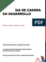 Displasia Decadera en Desarrollo