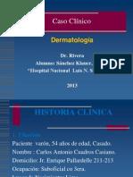 Caso Clinico Dermato-Vitiligo 2013 Pnp