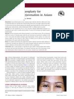 Subbrow Blepharoplasty for Upper Eyelid Rejuvenation in Asians