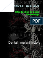 Implant Introduction & History -Simple Version