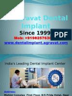 Dr Agravat Dental Implants India