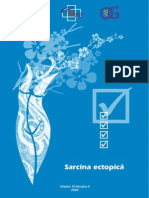 Sarcina ectopica
