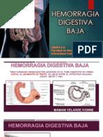 seminariohemorragiadigestivabaja-131006100735-phpapp01