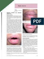 Jurnal Dermatitis Perioral 8