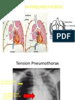 Mer Tension Pneumothorax