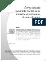Fluorose dentária 676-617-1-PB