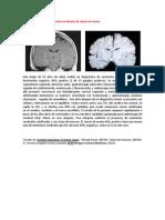 A primera vista 366 (Metástasis cerebrales de cáncer de mama).docx