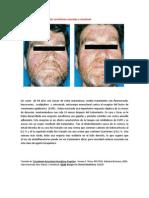 A primera vista 370 (Erupción acneiforme asociada a cetuximab).docx