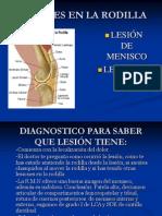 Lesiones en La Rodilla