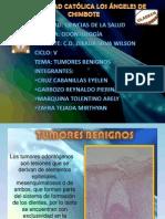 Expo Tumores Benignos