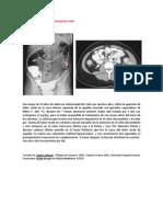A primera vista 383 (Enfermedad de Crohn).docx