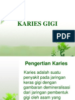 Karies Gigi