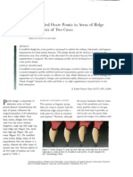 Modified Pontic Design for Ridge Defects