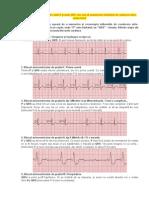 cum să memorizezi tulburările de conducere atrio-ventriculară