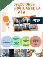 Proyecciones Radiograficas de La ATM