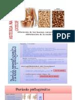 Historia Natural de La Enfermedad (Osteoporosis)