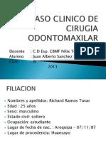 Caso Clinico de Cirugia Odontomaxilar