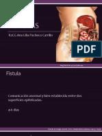 fistulas-130814211518-phpapp02