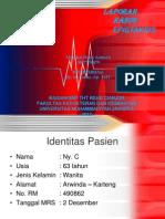 epistaksis revisi.pptx
