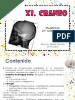 Craneeo Rx