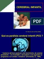 PCI Paralisis Cerebral Infantil Tipos Causas y Tratamientos