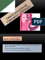 Embolizacion de Fibromas Uterinos