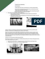 Gambaran Radiografik Kelainan Pulpo-periapikal & Kesalahan Interpretasi