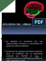 EPILEPSIA DEL LÓBULO TEMPORAL