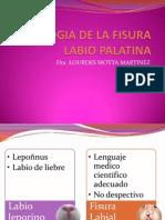 Etiologia de La Fisura Labio Palatina
