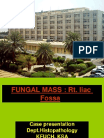 Fungal Colonic Mass