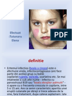 Eritemul infectios