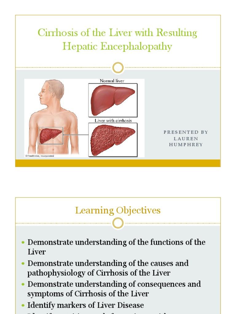 Case Study Cirrhosis Of The Liver Cirrhosis Liver