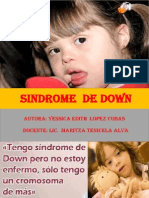 Monografia Del Sindrome de Down