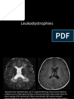 Leukodystrophies Imaging
