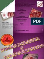 Patologia-fisura Labio Palatina_vengaodonto