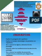 RAQUITISMO PATOLOGIA_vengaodonto