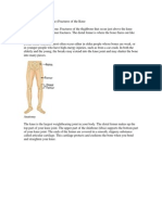 Distal Femur Fractures.
