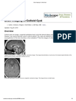 Brain Imaging in Colloid Cyst