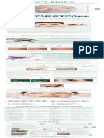 Mediskincare Acne behandeling