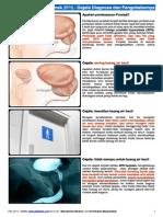Pembesaran Prostat Jinak (BPH) - Gejala Diagnosa Dan Pengobatannya - MedicineNet