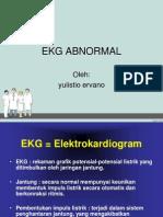 Ekg Abnormal
