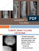 Radiologi Tumor Tulang
