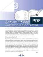 Chapter 19 Respiratory Distress Syndr