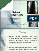 Nonunion