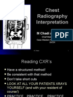 Chest X Ray made easy