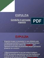 EXPULZIA-2